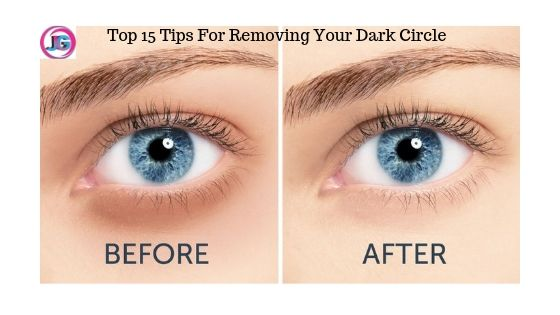 Top 15 Tips For Removing Your Dark Circle In 2019